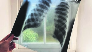 Coping with COPD in a pandemic world