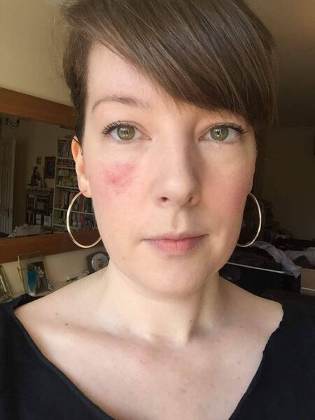 Aoife noticed a small patch of red flaky skin in 2018.