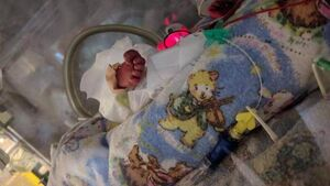 Families share their stories of premature births and high-risk pregnancies in Cork exhibition