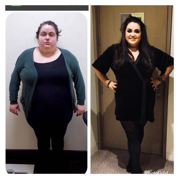 BEFORE AND AFTER: Trisha feels so much better having shed the weight.